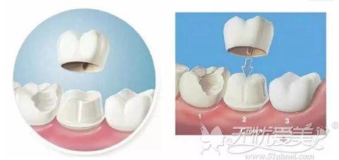美容冠牙齿矫正
