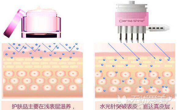 水光针跟肤护品的区别
