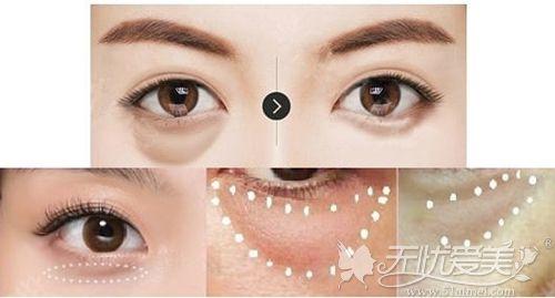韩国可以去除眼袋的情况
