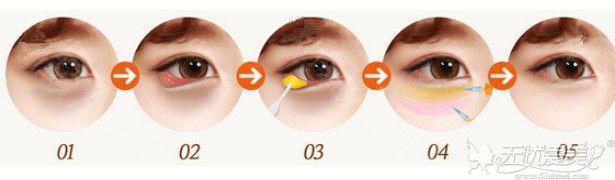 韩国加减法去眼袋手术过程