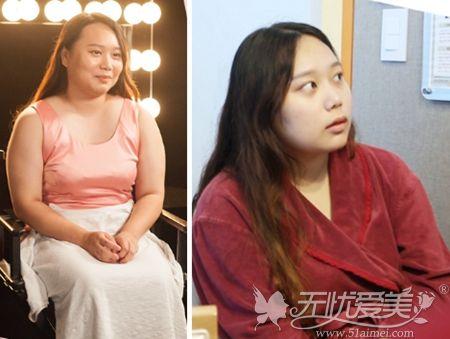 胖妹子在韩国365mc做吸脂手术前