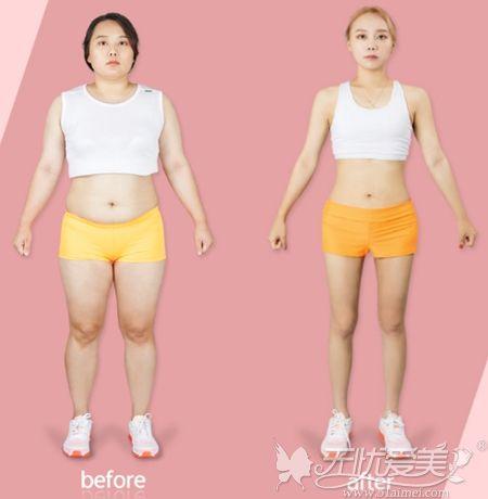 胖妹子在韩国365mc做吸脂手术后1年对比
