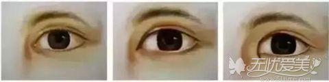 内眦赘肉眼部
