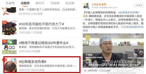 赴韩做植发手术登上热搜