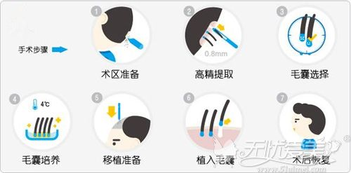 植发手术的过程