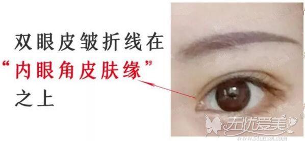 平行形双眼皮