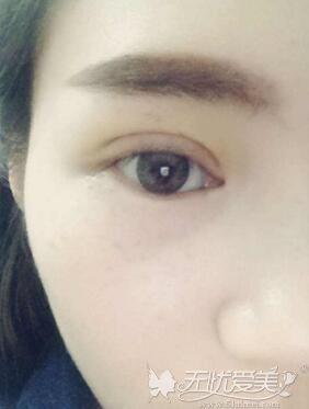 网红欧式平行双眼皮