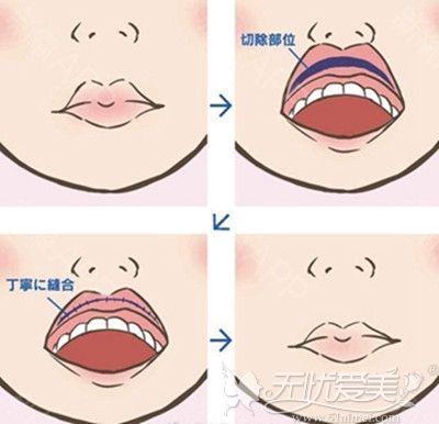 厚唇改薄手术方式