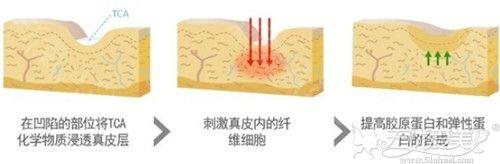 韩国Dot Peeling去疤药