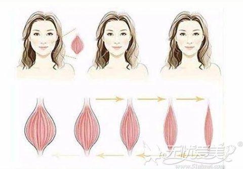 瘦脸针的原理过程