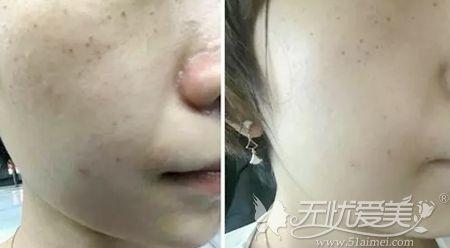 光子嫩肤改善皮肤晒斑