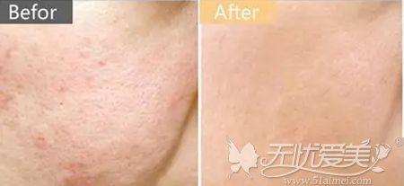 果酸焕肤改善皮肤痘疤