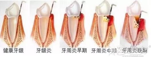 牙周炎的表现