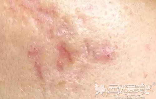 皮下分离术治疗痘坑进入红斑区