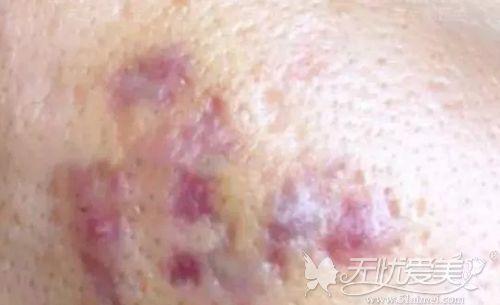 皮下分离术治疗痘坑进入瘀青期