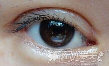 双眼皮手术后红肿