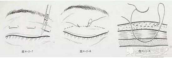 双眼皮手术间断埋线法