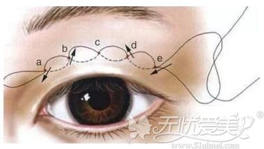 双眼皮手术连续埋线法
