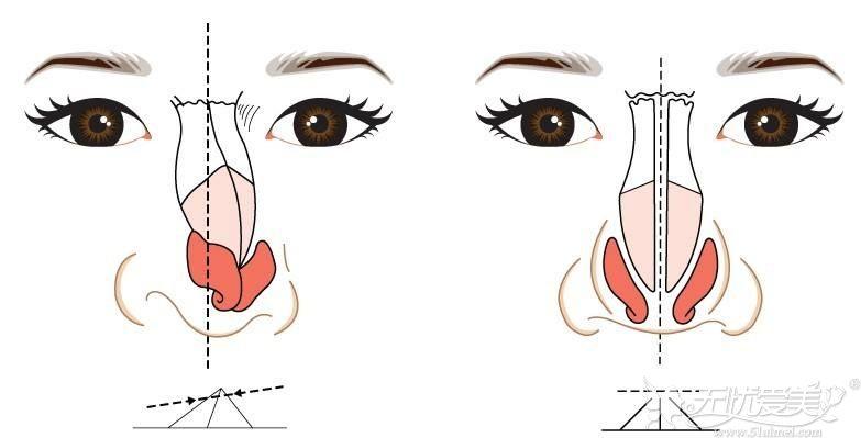 歪鼻矫正手术可以解决鼻子歪斜