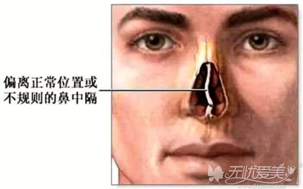 歪鼻矫正手术原理