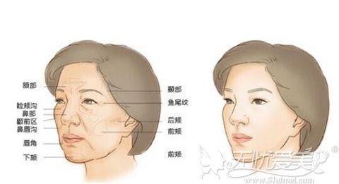 面部脂肪填充的部位