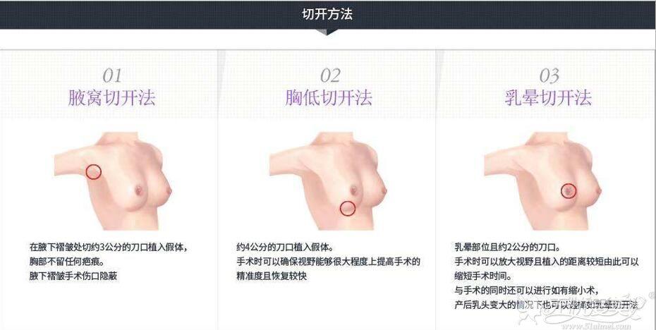 假体隆胸的切口位置