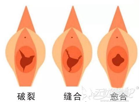 处女膜修复术