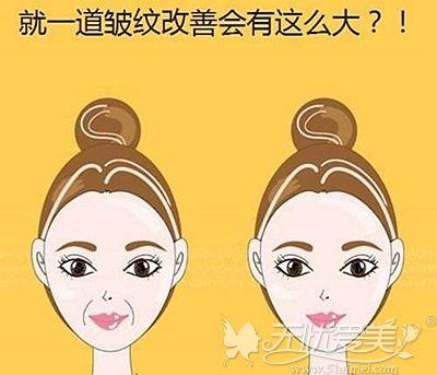 鼻唇沟对我们面部的影响