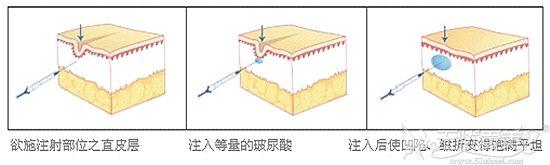 玻尿酸填充鼻唇沟原理