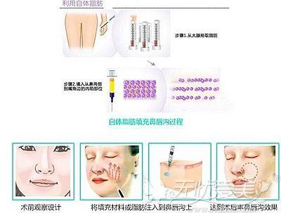 自体脂肪填充鼻唇沟过程解析