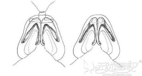 鼻头鼻翼综合整形