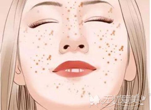 面部斑点皮肤问题