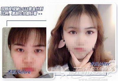 赣州韩美双眼皮手术真实案例