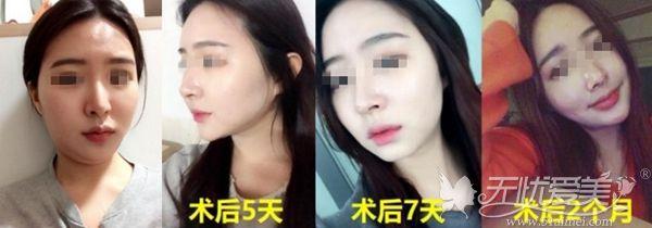 韩国面部吸脂手术案例