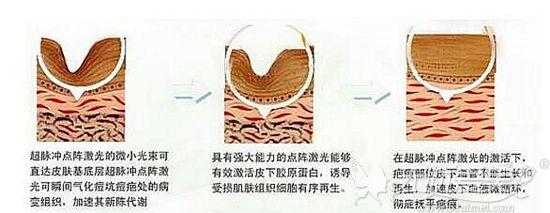 激光去除剖腹产疤痕的原理