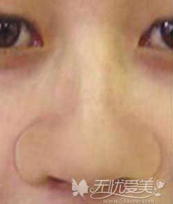 亚洲人宽鼻翼大鼻头