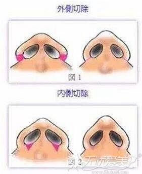 鼻翼整形内切法和外切法