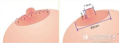乳晕过大需要乳晕缩小术改善