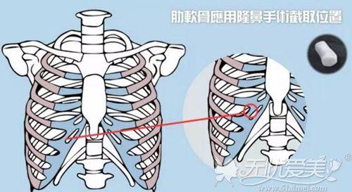 肋软骨隆鼻使用的肋骨位置
