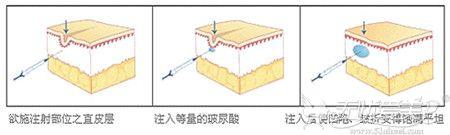 注射玻尿酸填充面部原理解析