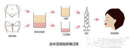 自体脂肪填充面部过程分析