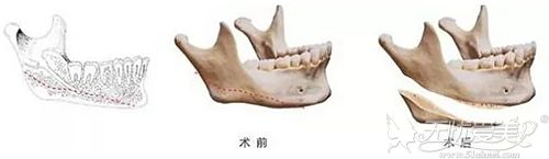 面部磨骨手术的过程