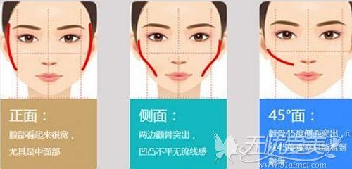 面部磨骨手术的理想效果