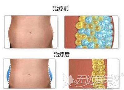 吸脂前后的对比和体内脂肪细胞的变化