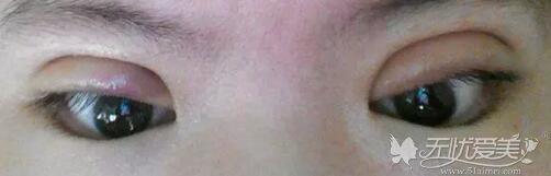 双眼皮设计过宽造成肉条感