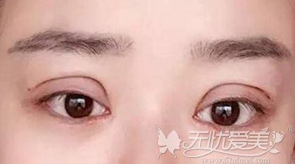 双眼皮手术眼轮匝肌切除过多