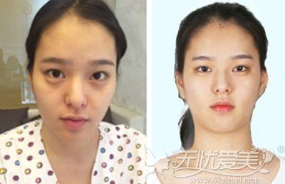 在韩国灰姑娘做眼鼻手术+面部轮廓整形术后半年就恢复了