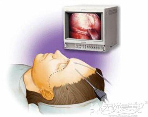 手术除皱的原理