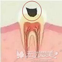 牙齿中龋阶段