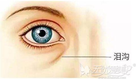 眼袋切多了造成泪沟深能修复吗